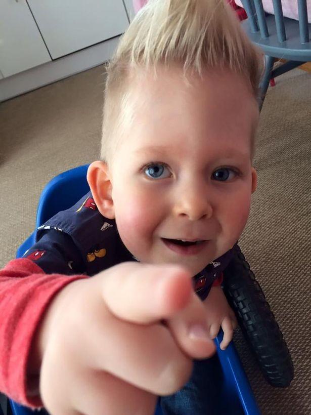 красная сыпь на ладонях ребенка фото