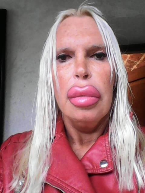 posle-transseksualnogo-perehoda